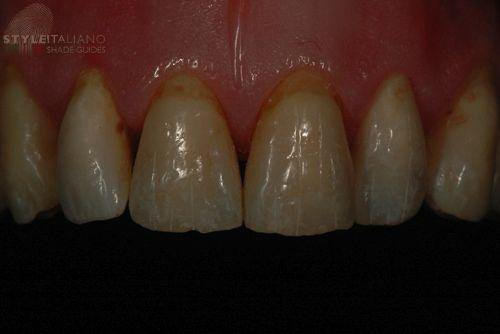 styleitaliano style italiano dentistry dental photography