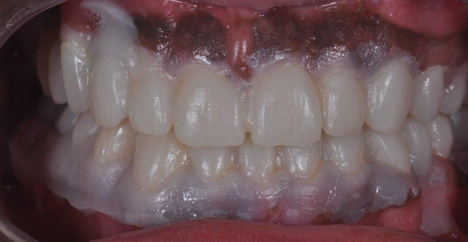 style italiano styleitaliano dentistry wax-up