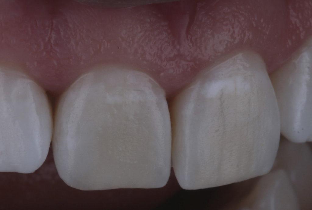 white teeth and gum