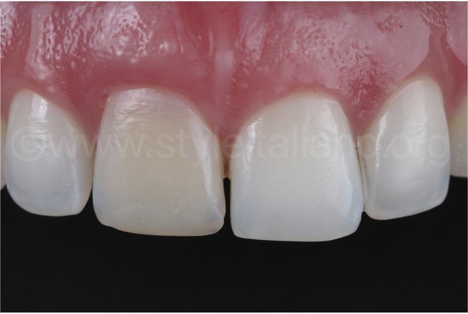 discolored upper right central incisor