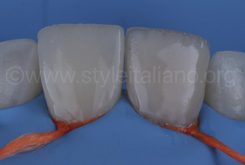 composite enamel layering under rubber dam isolation