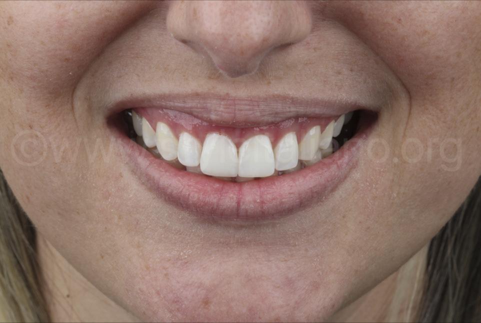 smile after direct veneering