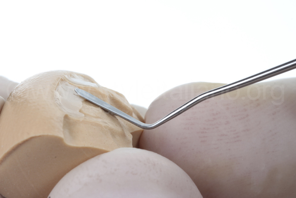 packing of composite on silicone key for direct incisor restoration