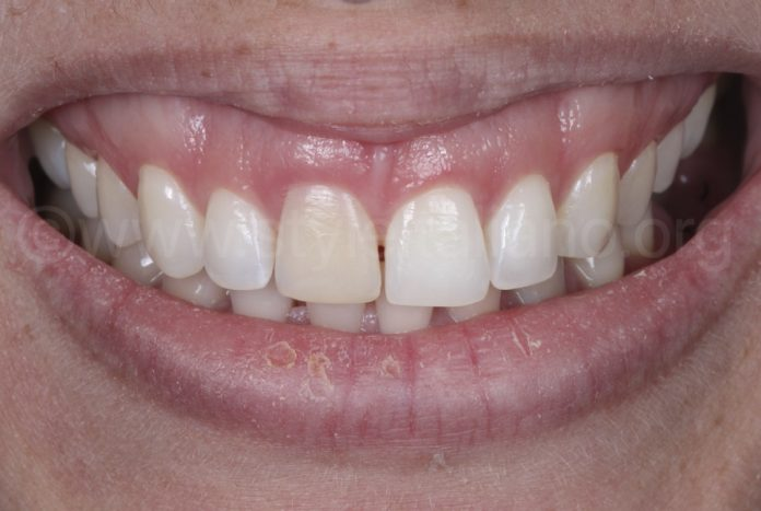 smile with discoloured upper incisor after trauma