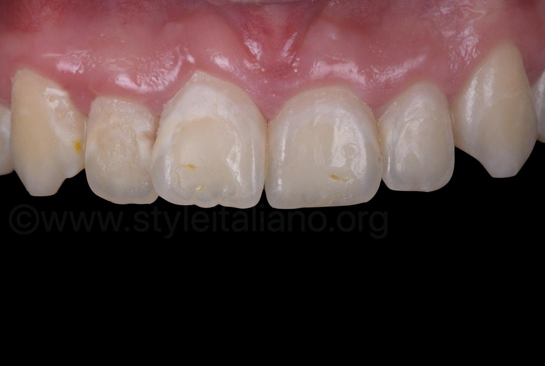 severe gingivitis with enamel demineralization