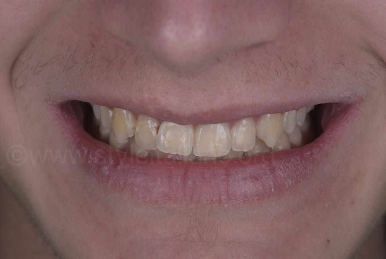 smile before restorative treatment