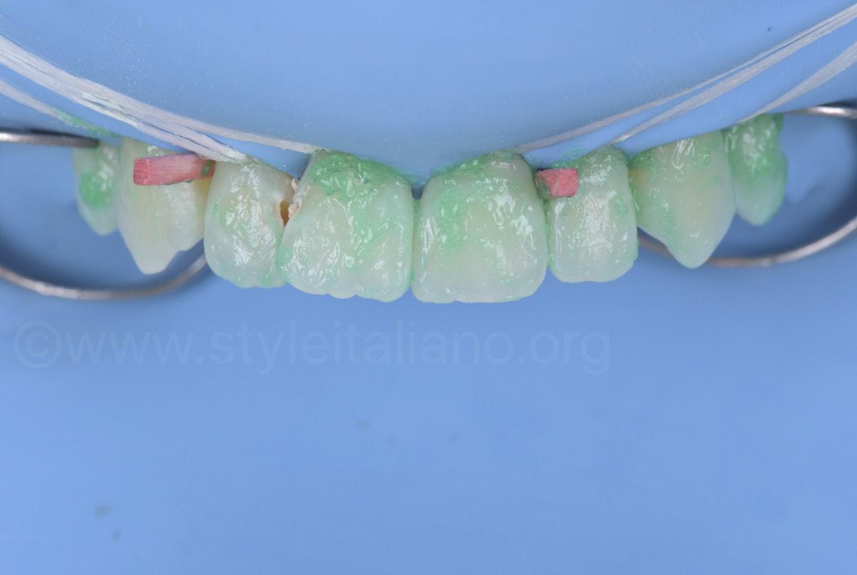 etching gel on upper teeth