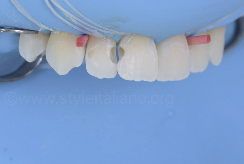 cavities before restoration