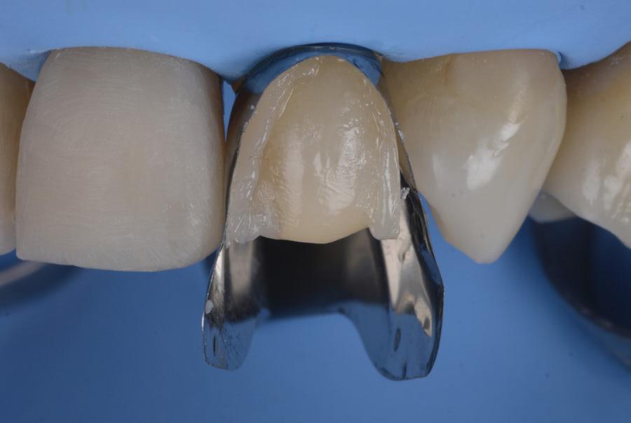 restoring with unica anterior matrix and composite