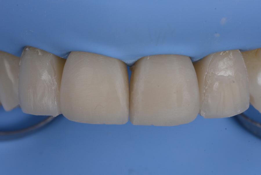 rough composite restorations on upper incisors