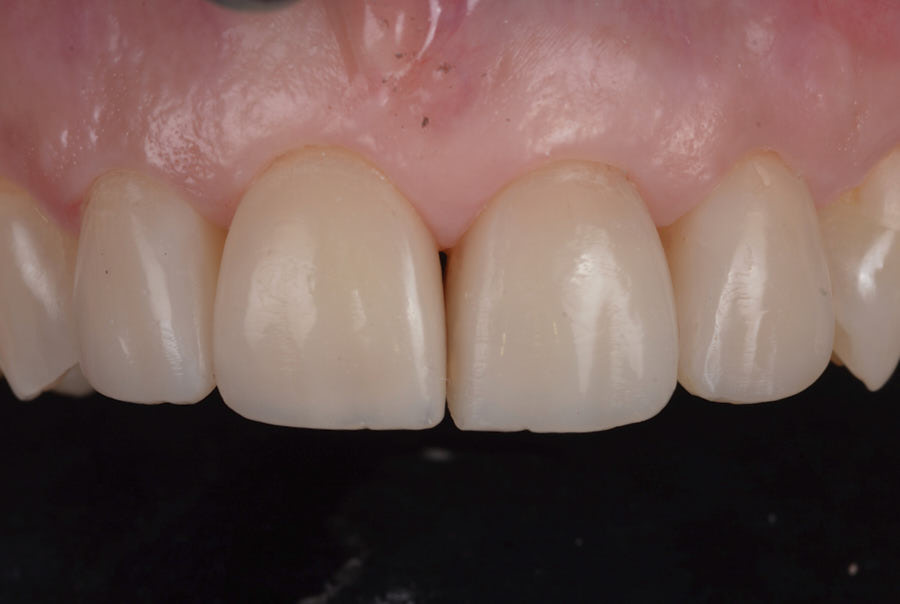 upper composite resin veneers after finishing and polishing
