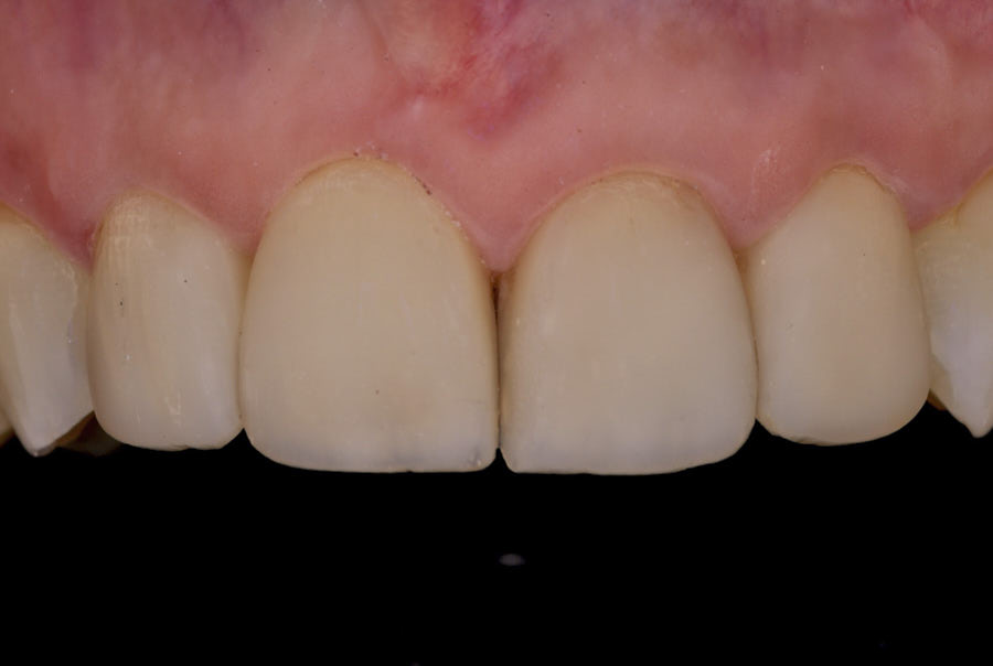 polarized picture for composite veneer check