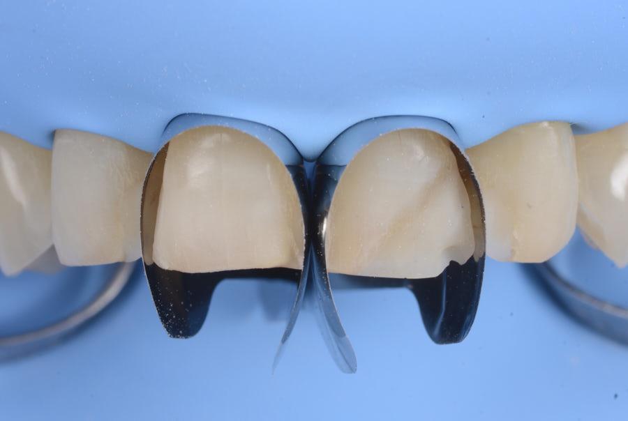 unica matrix polydentia for anterior direct restoration