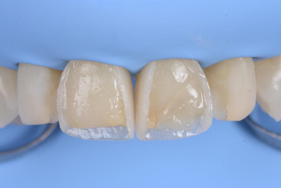 incisor direct composite veneering
