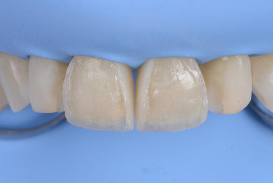 composite shape modification of upper teeth