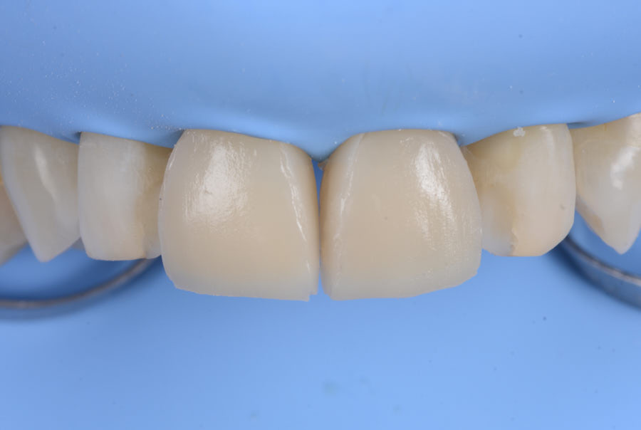 composite restorations on central incisors