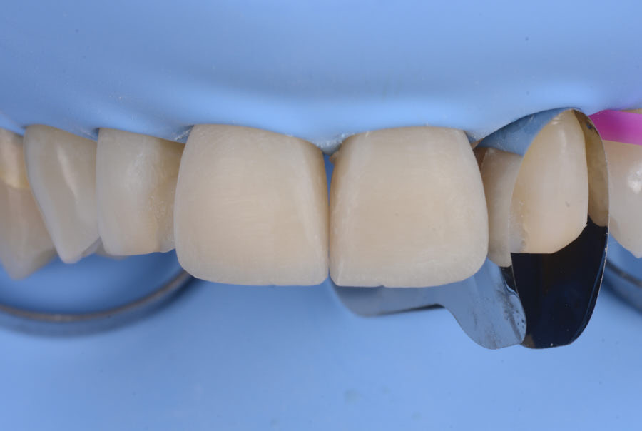 lateral incisor isolation for direct composite