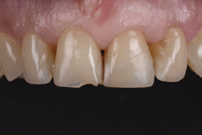 old composite restoration and chipped incisor