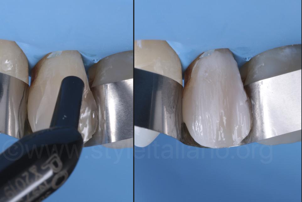 style italiano styleitaliano anterior discoloration