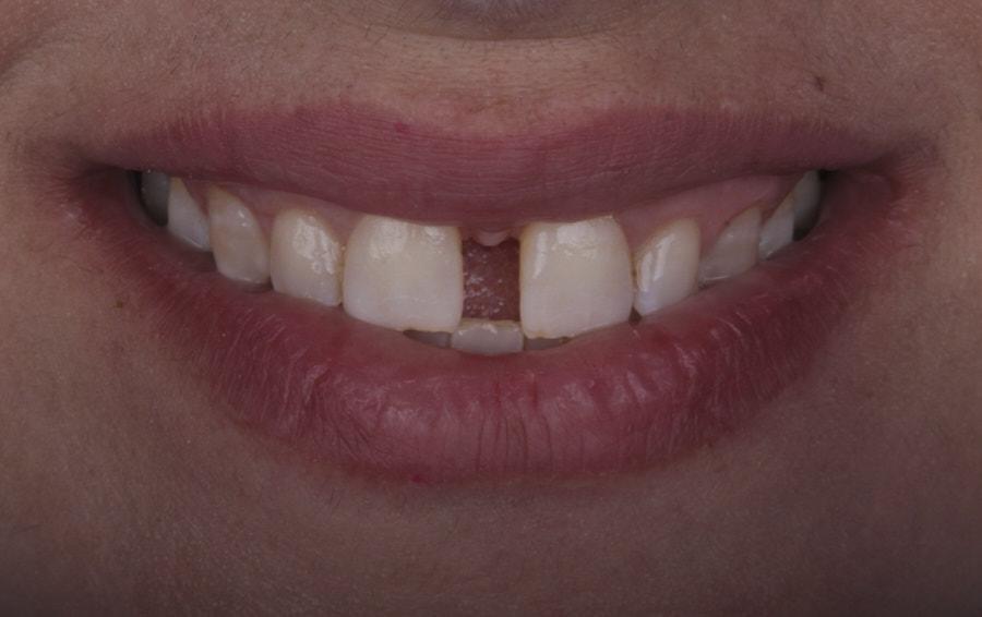 smile with big diastema
