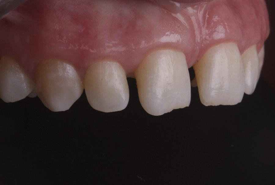 spacing for restorative diastema closure