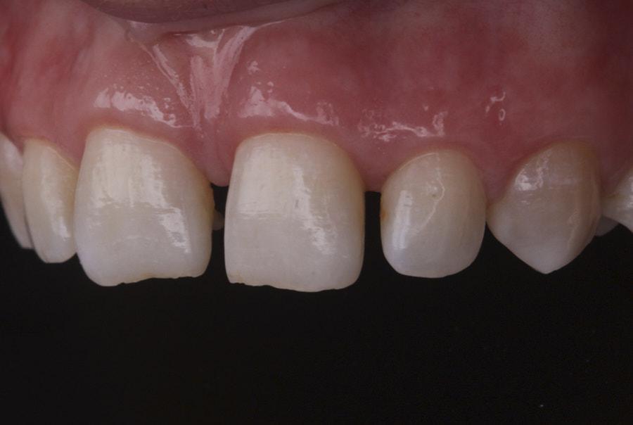 orthdontic spacing before restorative treatment