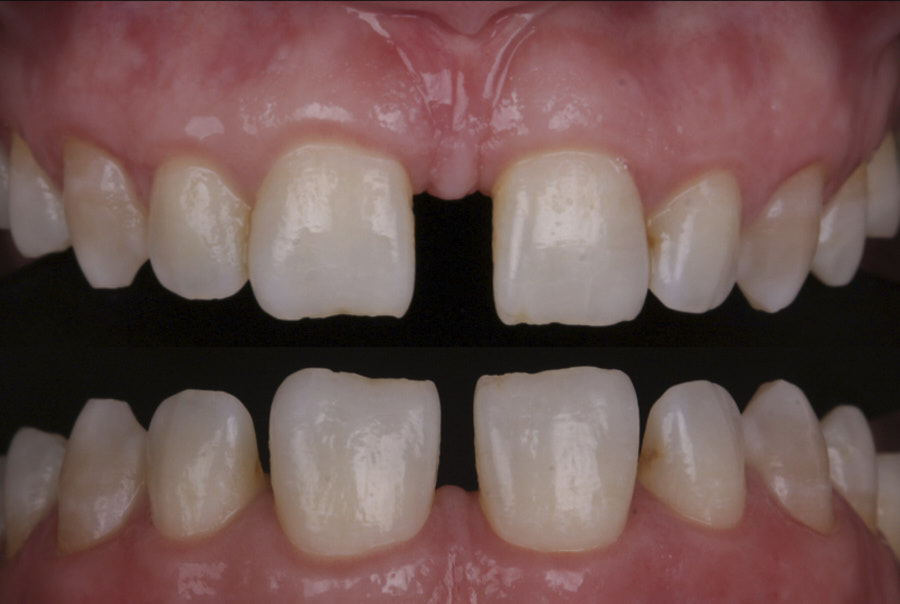 alt before and after orthodontic treatment
