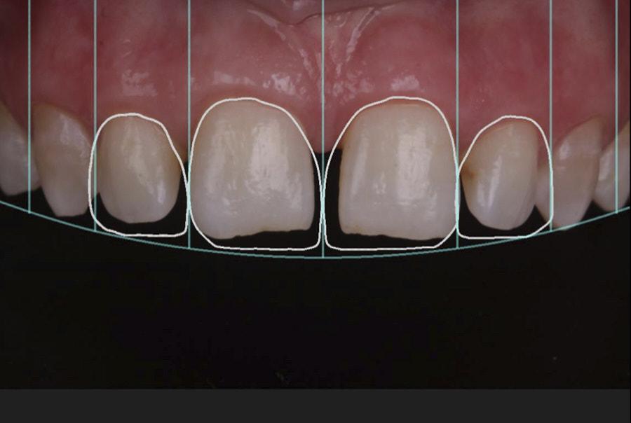 digital smile design for restorative diastema closure