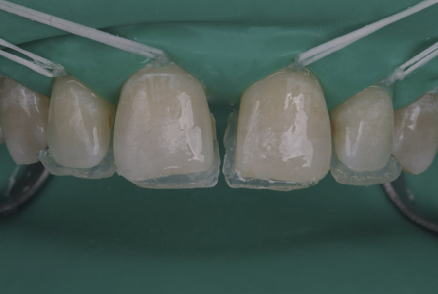 palatal composite wall layering technique