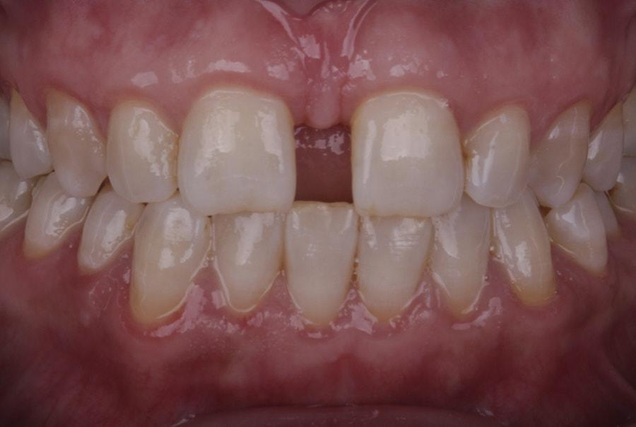 intraoral picture of diastema between incisors