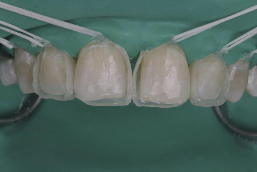 composite shell for direct anterior restoration