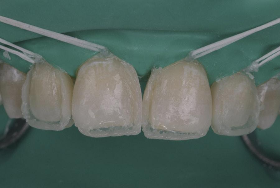 dentin composite resin stratification