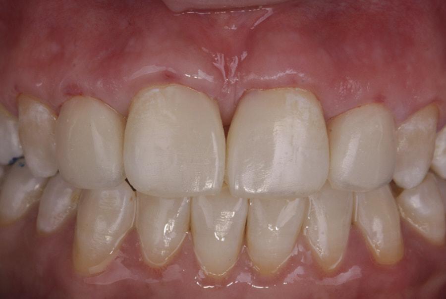 composite resin incisor restorations