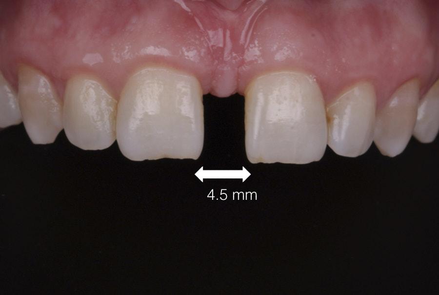 measurement of diastema