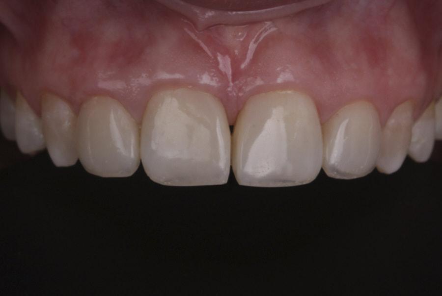 polished composite resin direct restorations