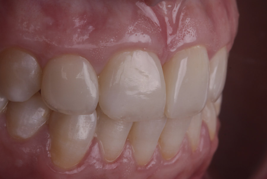 details of composite resin on incisors