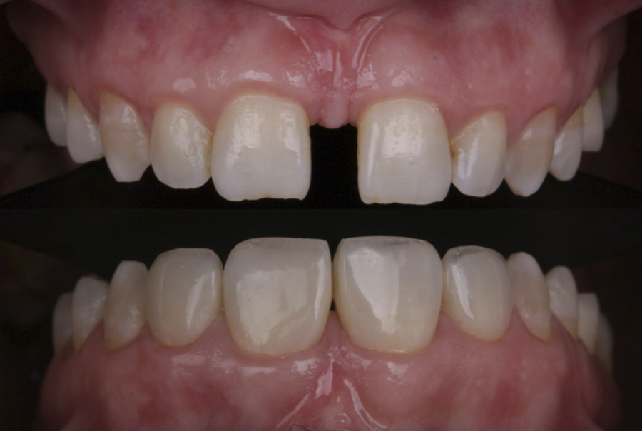 before and after orthdontic and restorative treatment of diastema