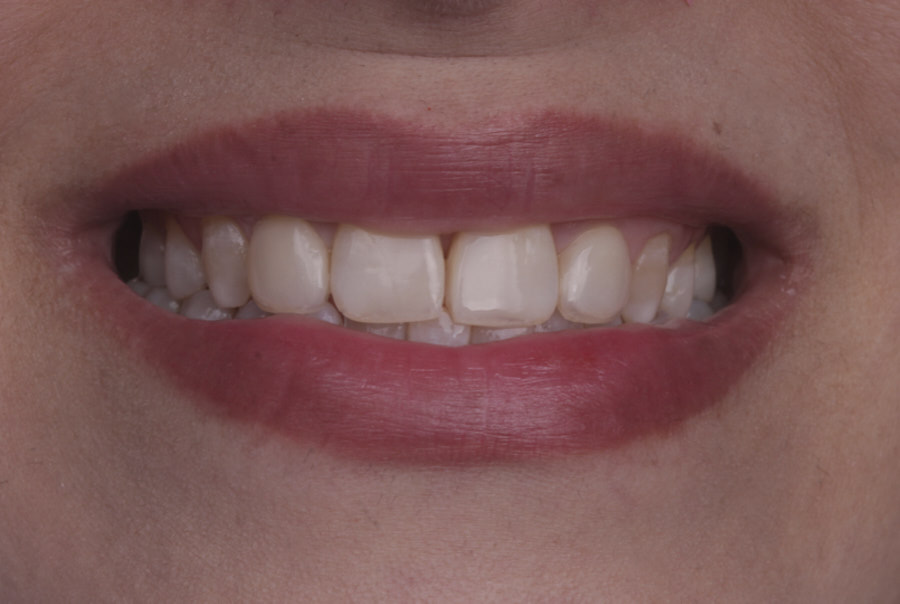 smile with composite restorations on incisors