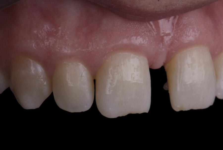 tooth movement towards diastema closure