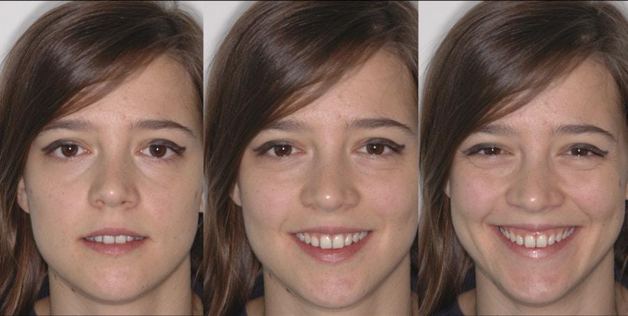 gum exposure in smile
