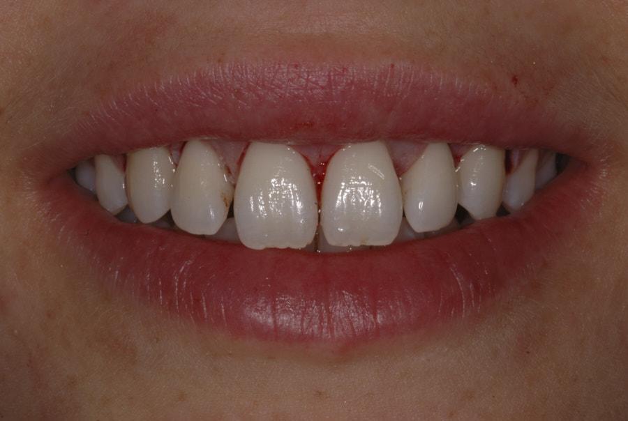 smile after gum surgery