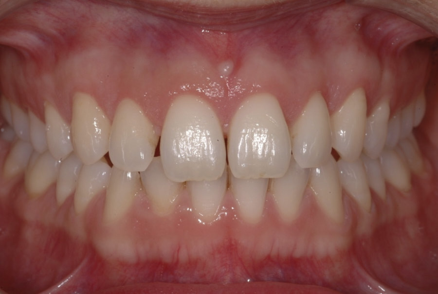 one year after gum surgery