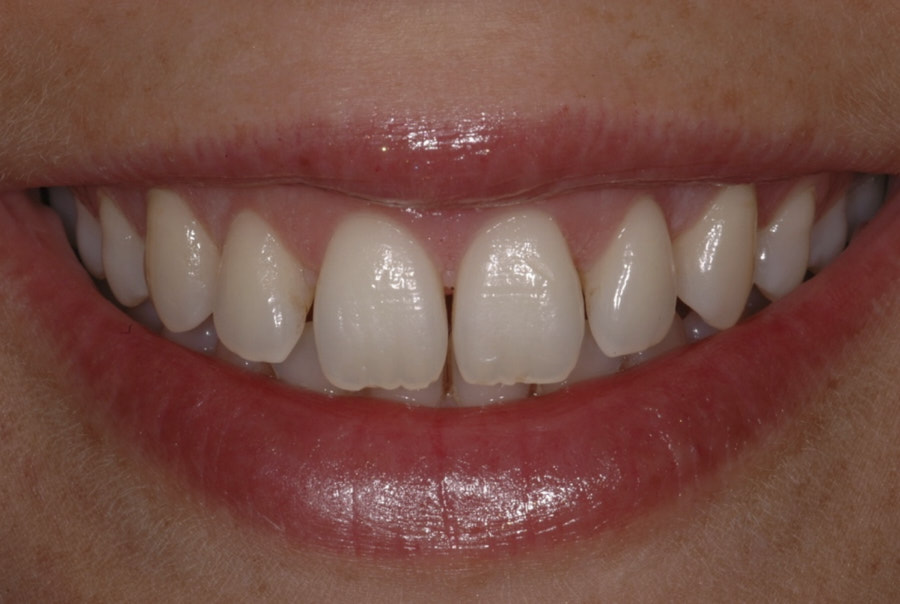 smile after periodontal surgery