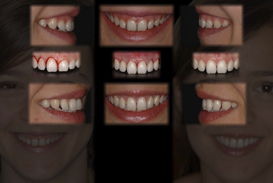 before and after gum surgery
