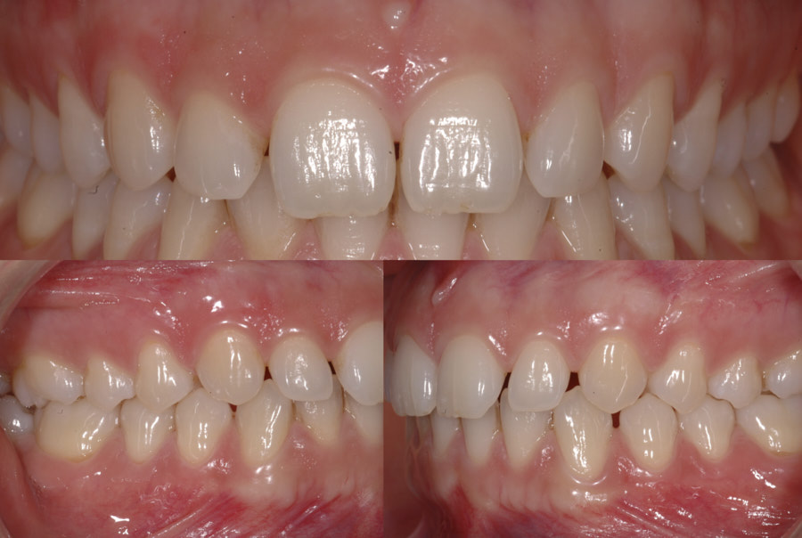 intra-oral pictures of teeth