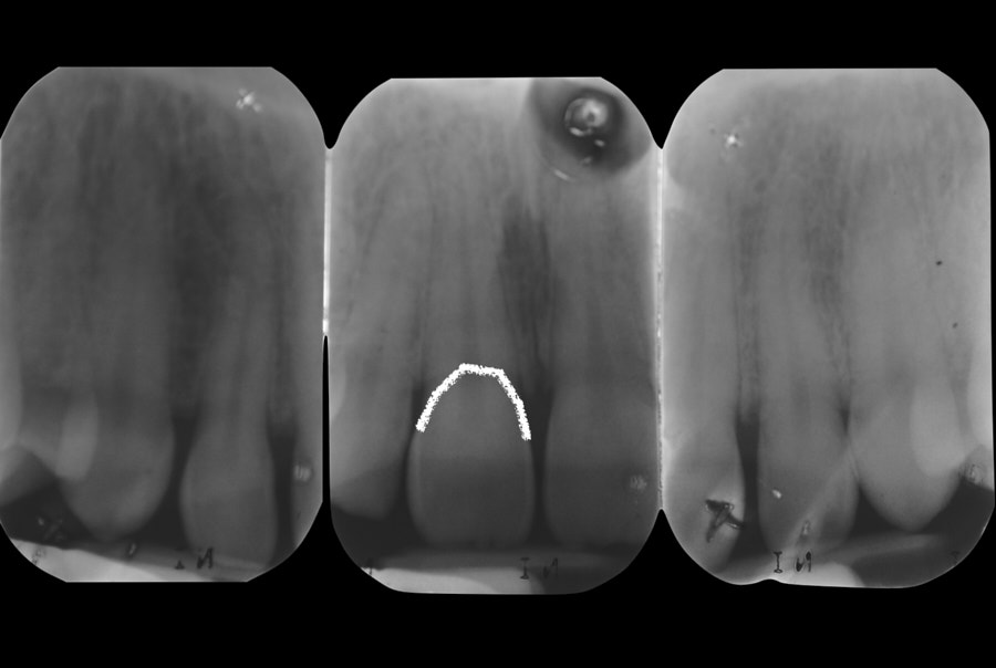 x-ray for clinical crown length comparison