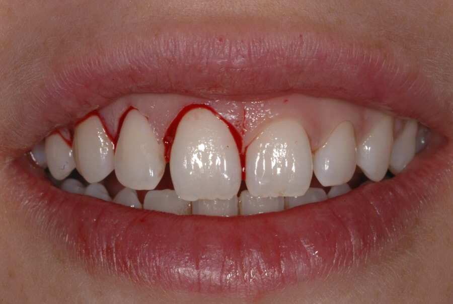 crown lengthening of the right upper teeth.