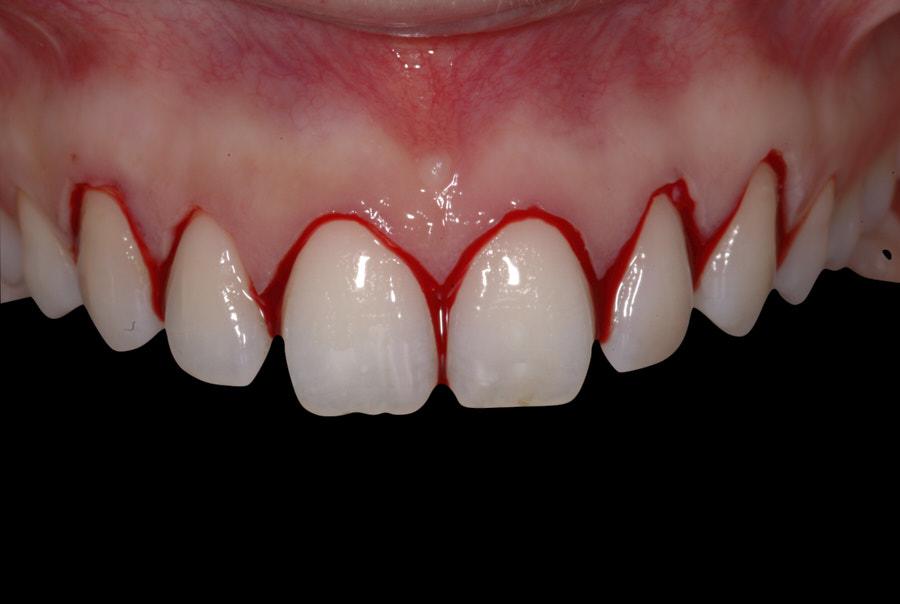 Social six gingivectomy