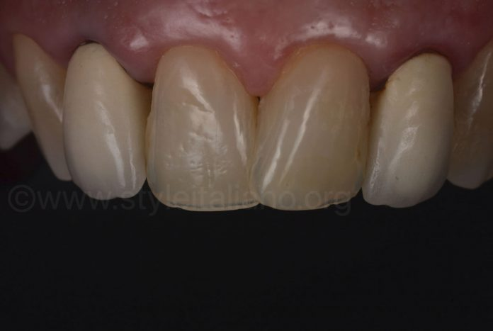 old metal ceramic crowns on lateral incisors
