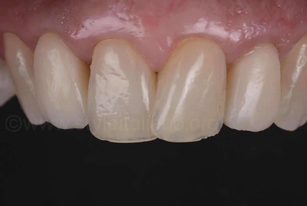 provisional resin crowns on lateral incisors